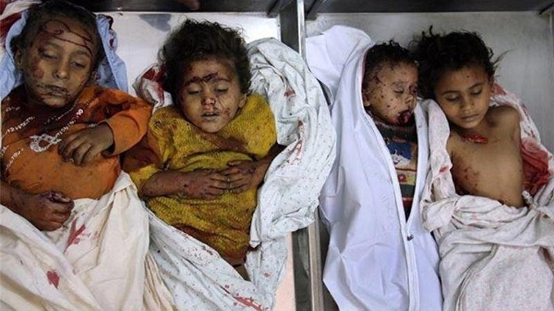 صنعاء: سازمان ملل در برابر گرسنگی و کشتار میلیون ها کودک یمنی کور و کر است