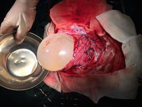 خبرنگاران عمل نادر جراحی کیست مغزی در سبزوار با موفقیت انجام شد